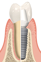 tooth to implant comparison